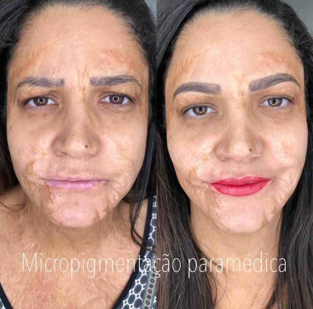 Micropigmentação Paramédica – Valéria